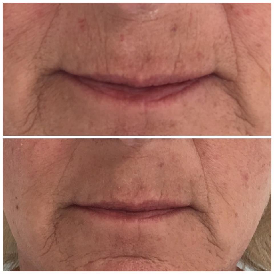 Lippenfältchen Oberlippe nach nur einer Behandlung - tolles Ergebnis!