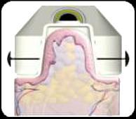 Kryolipolyse - mit Kälte gegen die Fettpolster