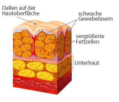 Haut mit Cellulite