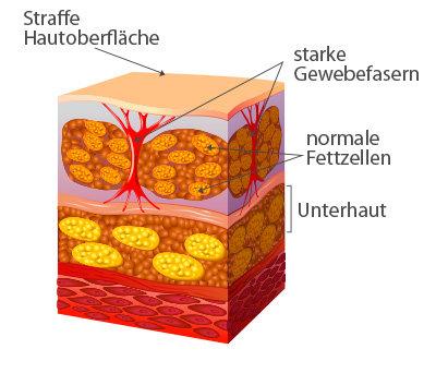 Cellulite freie Haut