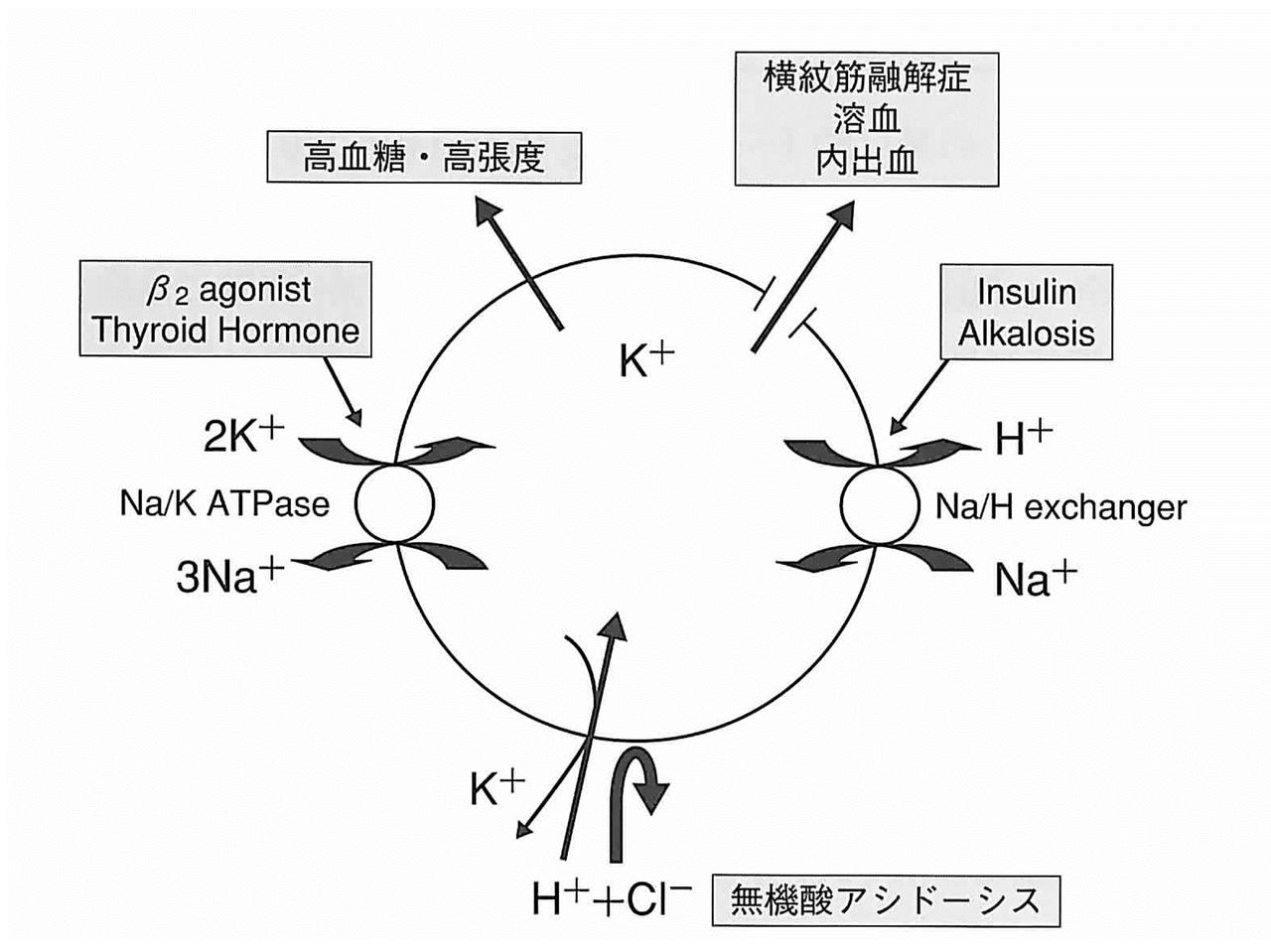 カリウム 血 症 低 電解質異常の心電図|各疾患の心電図(10)