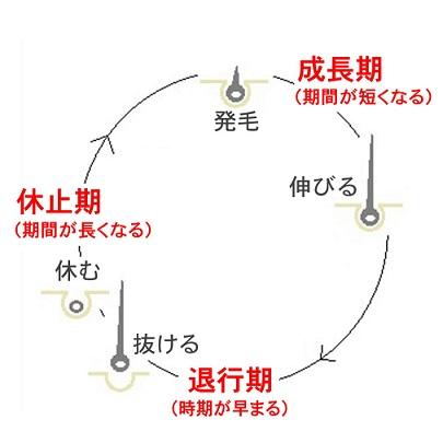AGAが発症した人の毛髪サイクルを解説したイラスト