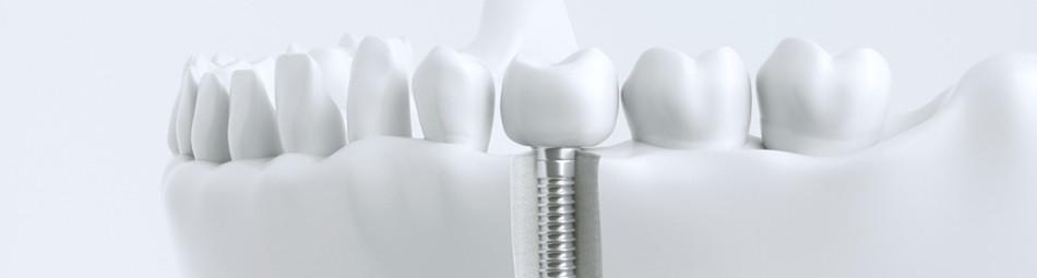 ein Implantat als eingesetzter Pfeiler aus körperverträglichen Metall