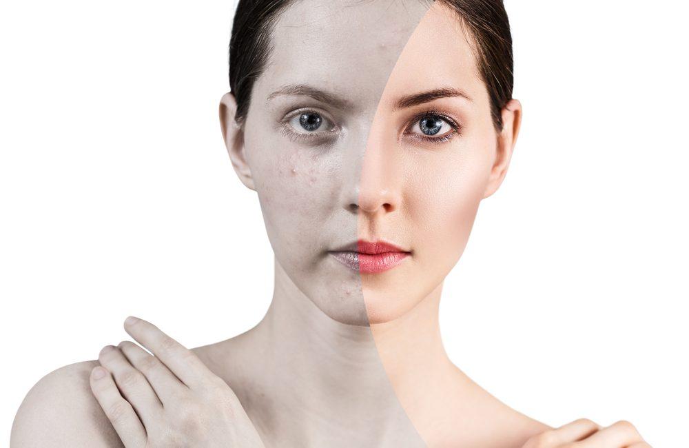 Onzuivere huid en acne