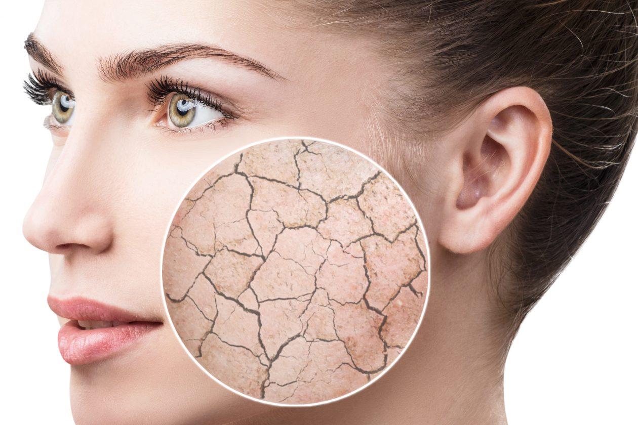 Heb je last van een droge huid?