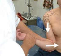 肩関節前方脱臼04