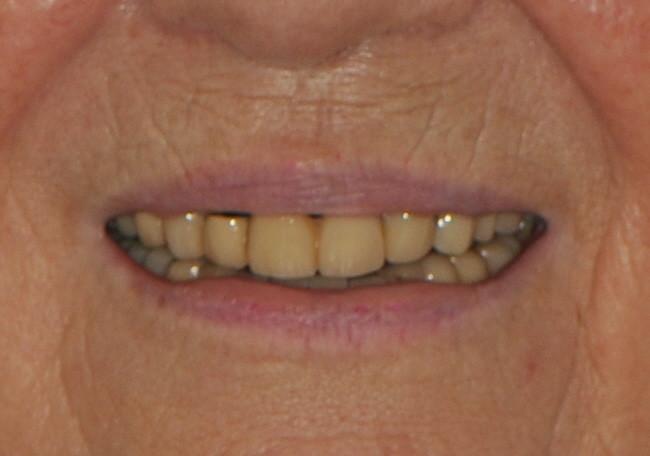der alte Zahnersatz