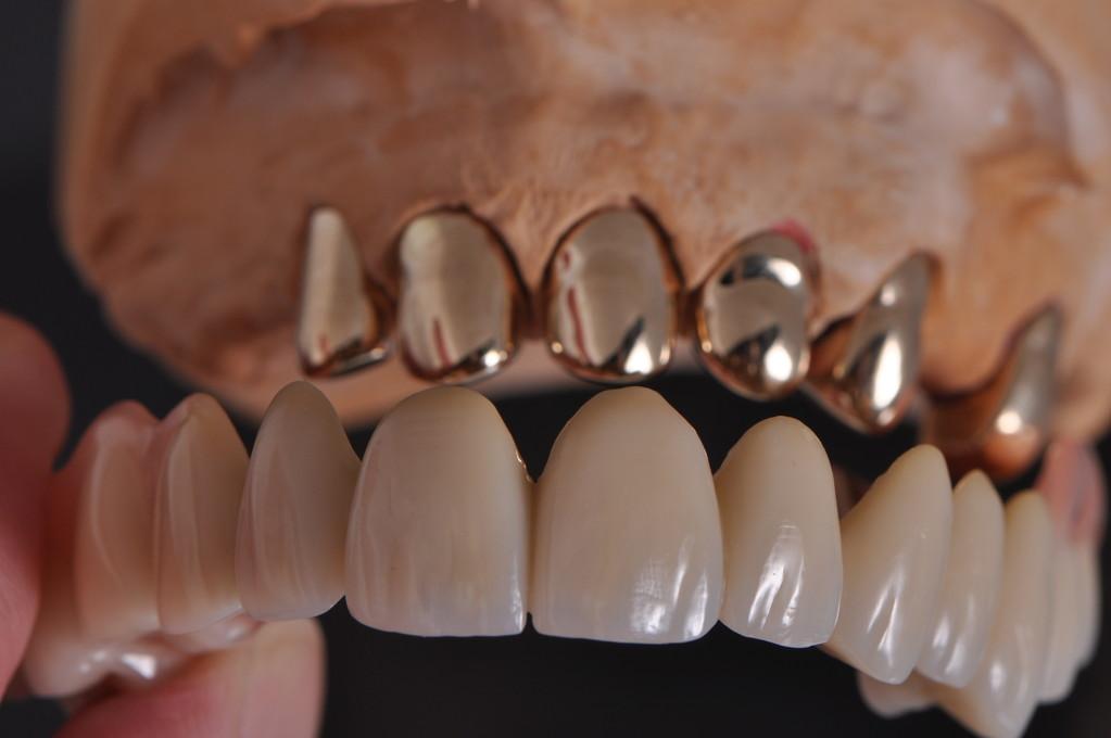 Goldfarbene parallele Kronen werden später auf den Zähnen befestigt.