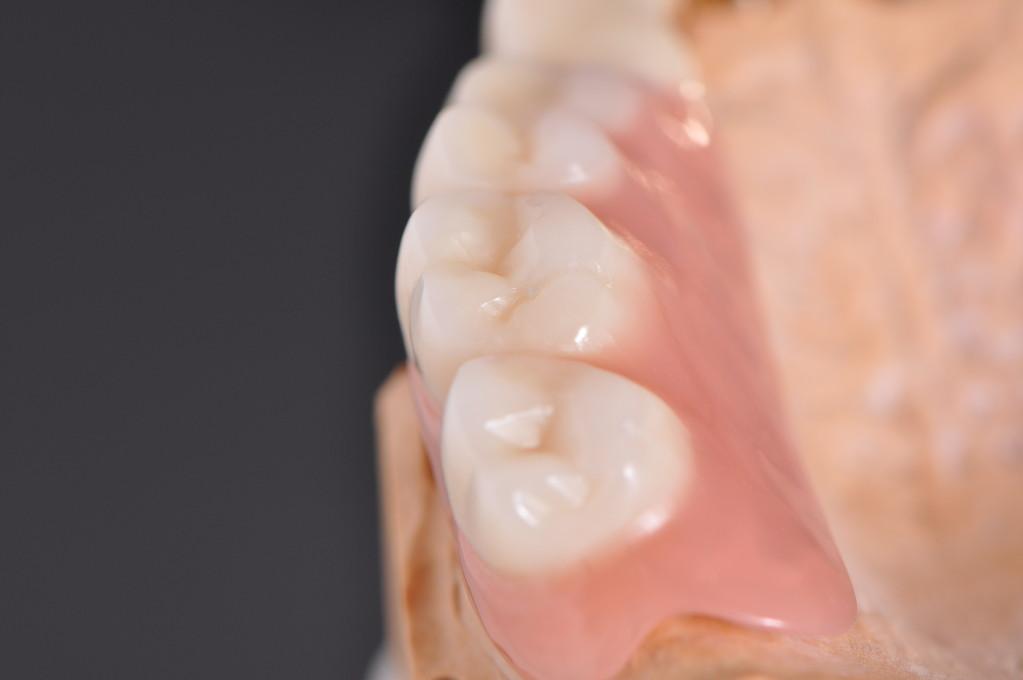 Hochwertige Komposite Zähne ersetzen die fehlenden Zähne.