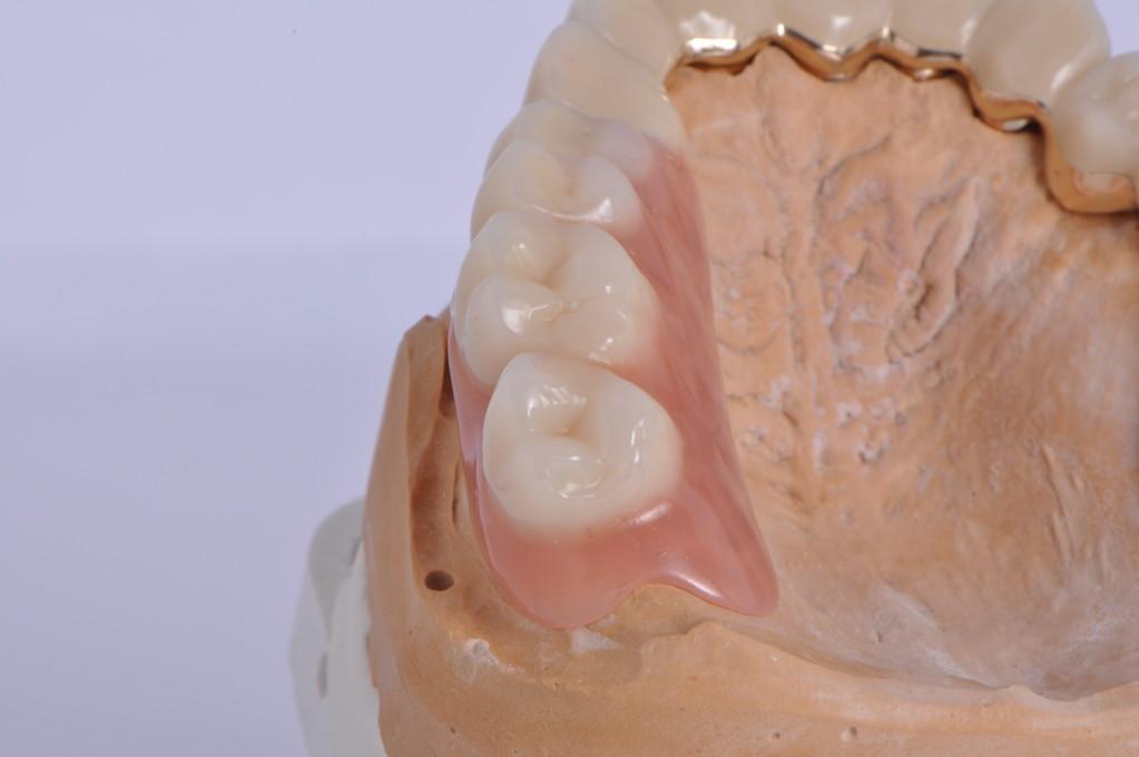 Die ersetzten Zähne sind fest mit den Kronen verbunden.