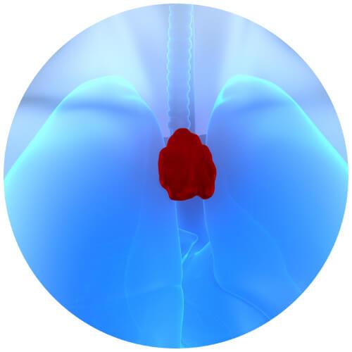 Bild: Thymus