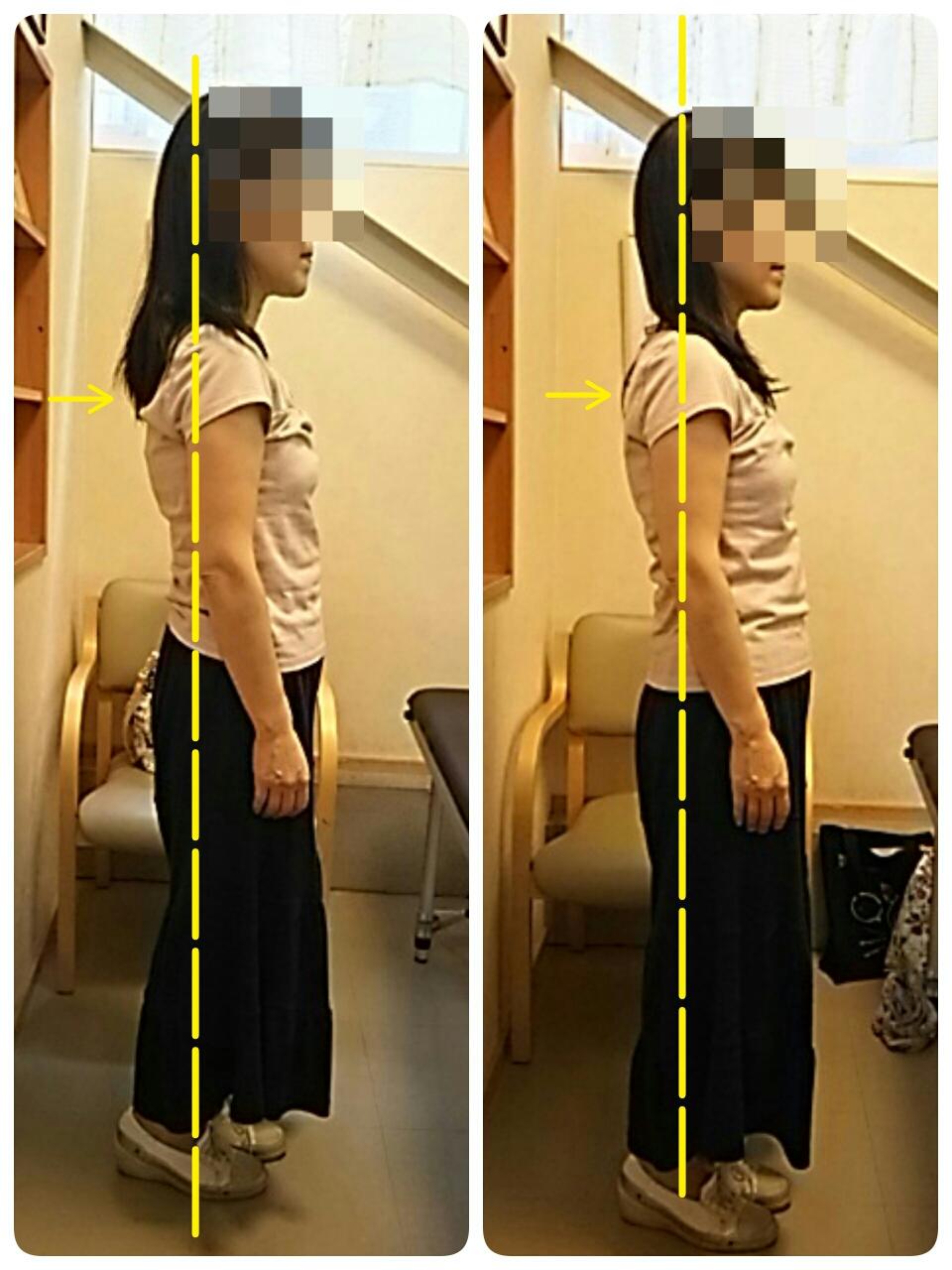 巻き肩改善🎵バストアップ、ヒップアップ〰(^o^)