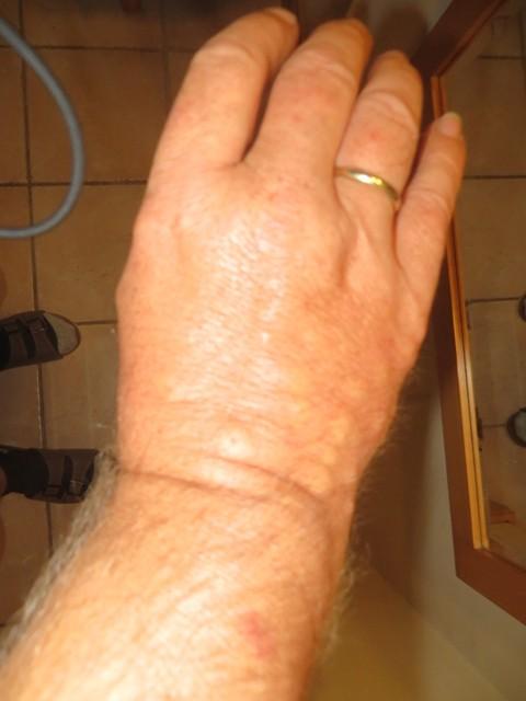 Die Rache der Mücken ( über 20 Stiche pro Hand)