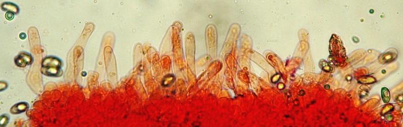 Hebeloma mesophaeum (Pers.) Quél. (NON COMMESTIBILE) Cheilocistidi del filo lamellare 40-70x5-8 nm  Microfoto Emilio Pini
