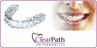 ClearPath Orthodontics Hotline T: +63 2 856-7878