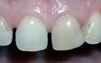 Ein einzelner dunkler Zahn in einer schönen weißen Zahnreihe