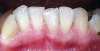 Schiefe Zähne sind nicht immer schön.