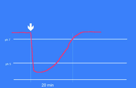 Die Absenkung des ph-Wertes unter der Plaque nach Zuckerzufuhr (Pfeil). Erst nach etwa 20 Minuten ist der neutrale Ausgangswert wieder erreicht.