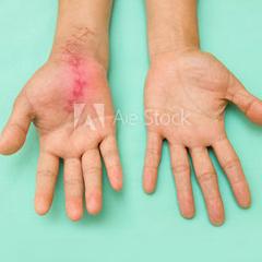 Sensibilität, Handtherapie, Praxis für Ergotherapie, ergo-am-rhein.ch, Julie Dehay