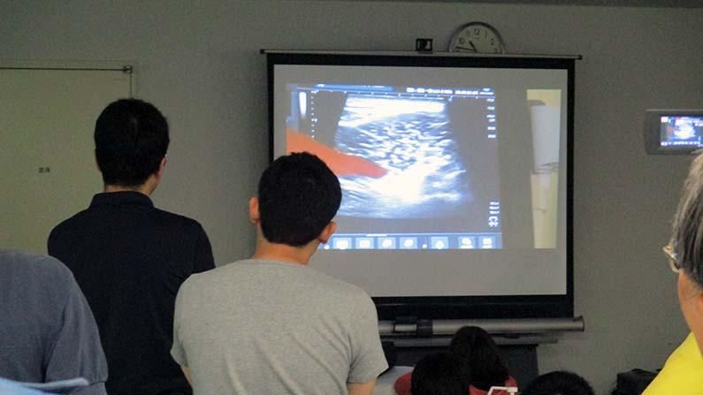 現代医学ー超音波画像で筋肉を見る