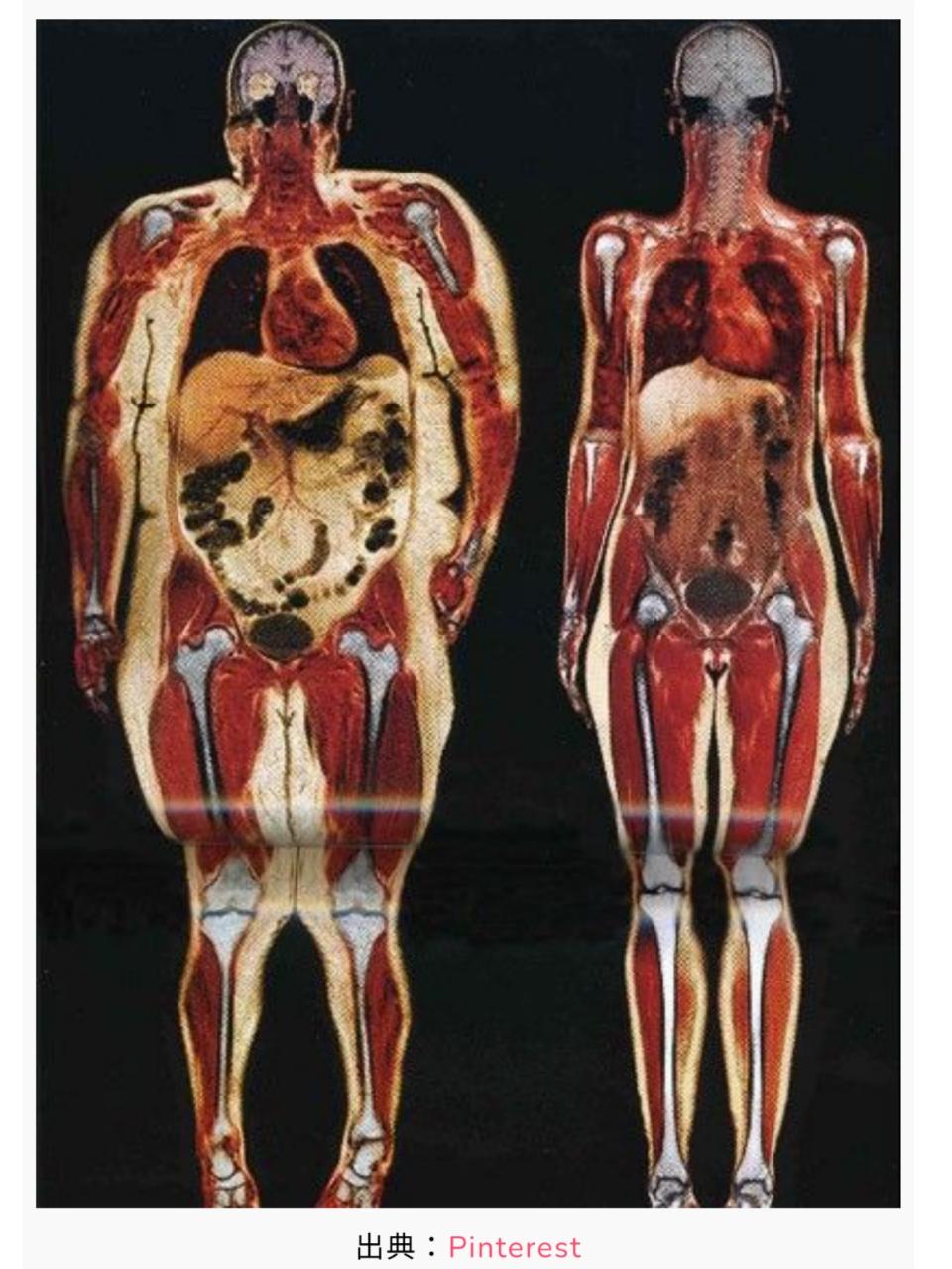 袋井ダイエット 筋肉のねじれ 内臓脂肪と皮下脂肪