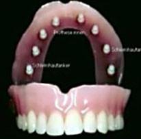 In einer Oberkieferprothese eingearbeitete  acht SCHLEIMHAUTANKER. Der Gaumen bleibt daher unbedeckt.