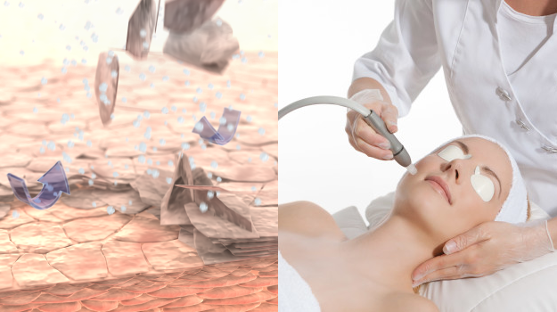Microdermabrasion baden-baden rastatt gaggenau bühl Mikrodermabrasion