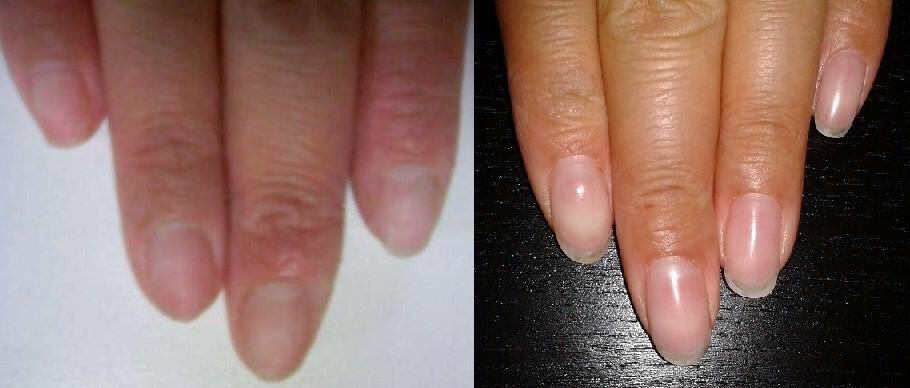 ビフォアーは地爪 & アフターはクリアジェルをつけてから2週間過ごした爪