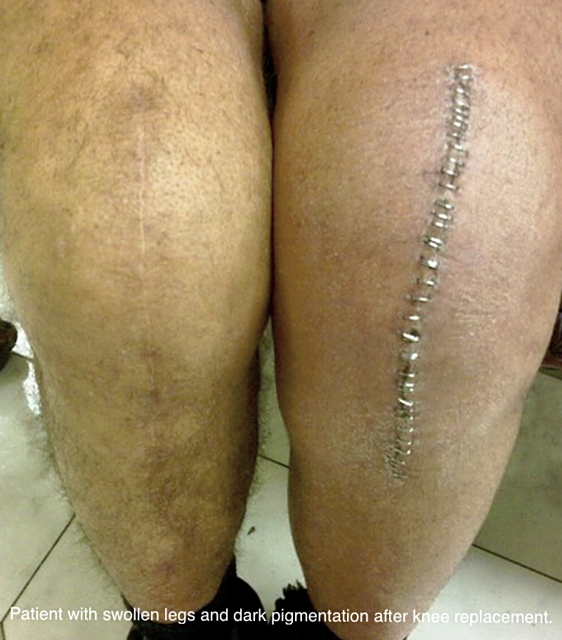 Leg swelling after knee surgery is often caused by an underlying vein condition.