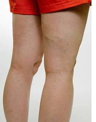 Mild varicose vein in the back of the leg. Varicose veins are not a cosmetic but medical problem. Vein treatment options in Atlanta, Georgia.