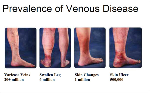 Vein statistics for Americans. Varicose veins affect more than 20 million people, six million people have a swellen leg, one million people have skin changes, and five hundred thousand Americans have a skin ulcer due to vein disease.