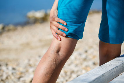 Advantages of Vein Treatment Before Knee Surgery - Truffles