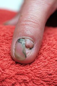 Verletzung am Fingernagel