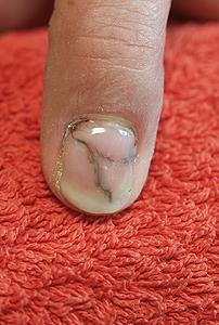 Nagelprothetik am Zeigefinger