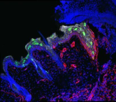 Stem cells (green) migrate into a three-day-old wound to repair it.