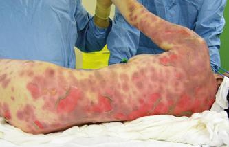 Lésions de peau 2a, 80% TBSA