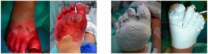 Application de SUPRATHEL sur une engelure au pied. Courtoisie Dr Rapp (Stuttgart)