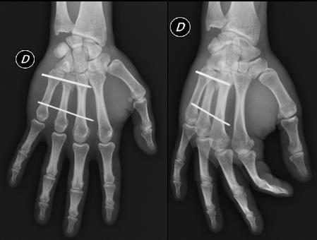 Fractura mano, cirugia deportiva ortopedia Toulouse Dr Rémi La Croix du Sud