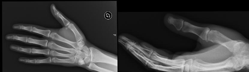 La radiografia es normal.