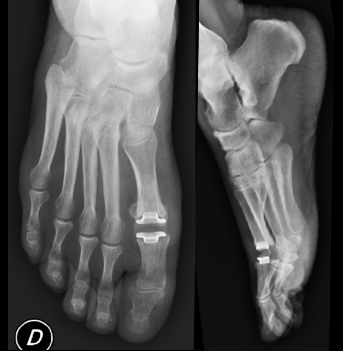 prothèse hallux rigidus