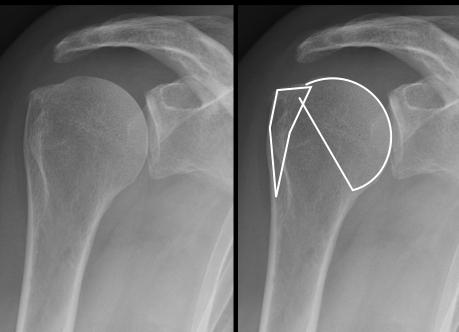 Fractura del hombro, Dr Rémi cirugia deportiva traumatologia Toulouse