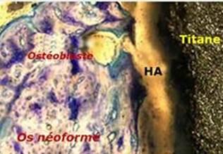 prothèse hanche impactée, repousse osseuse, titane, AH, ostéoblaste, Dr Rémi Toulouse