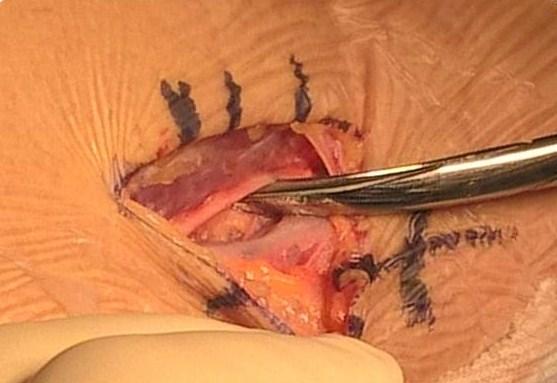 écueuil de cette intervention, soulevé du bout des ciseaux à disséquer : le nerf radial sensitif. Il est juste à côté, au bord interne du muscle brachioradial, et doit être repoussé.