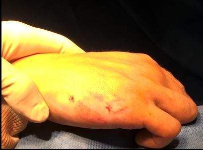 fracture main, chirurgie orthopédie sport Toulouse docteur Rémi
