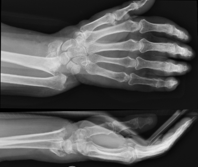 chirurgie du sport fracture poignet Toulouse chirurgie orthopédique Dr Rémi