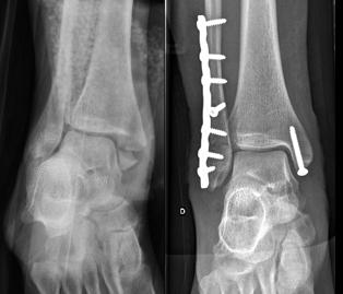 fractura de tobillo, cirugía deportiva de tobillo, Dr Rémi Toulouse La Croix du Sud