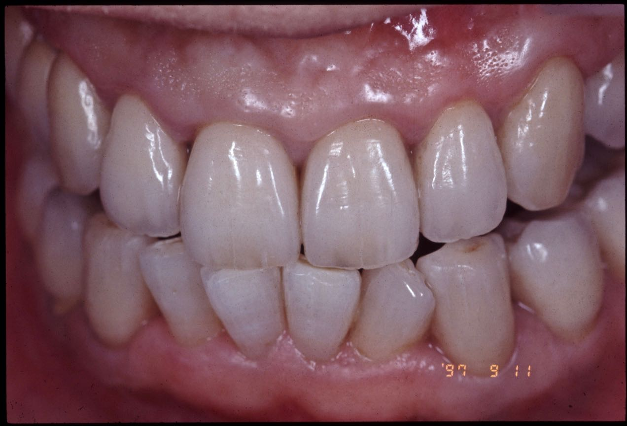 Case-11 After. The teeth other than the 4 anterior teeth of the mandible were prosthesis with a metal ceramic crown.