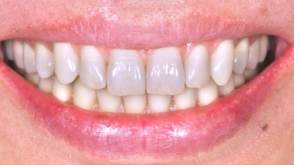 Case-4 After smile line. Improved smile line