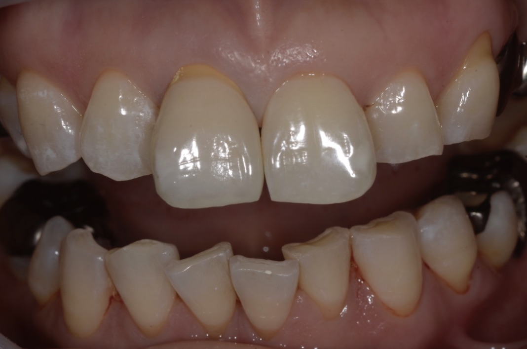 Metal ceramic crown immediately after setting in the oral cavity