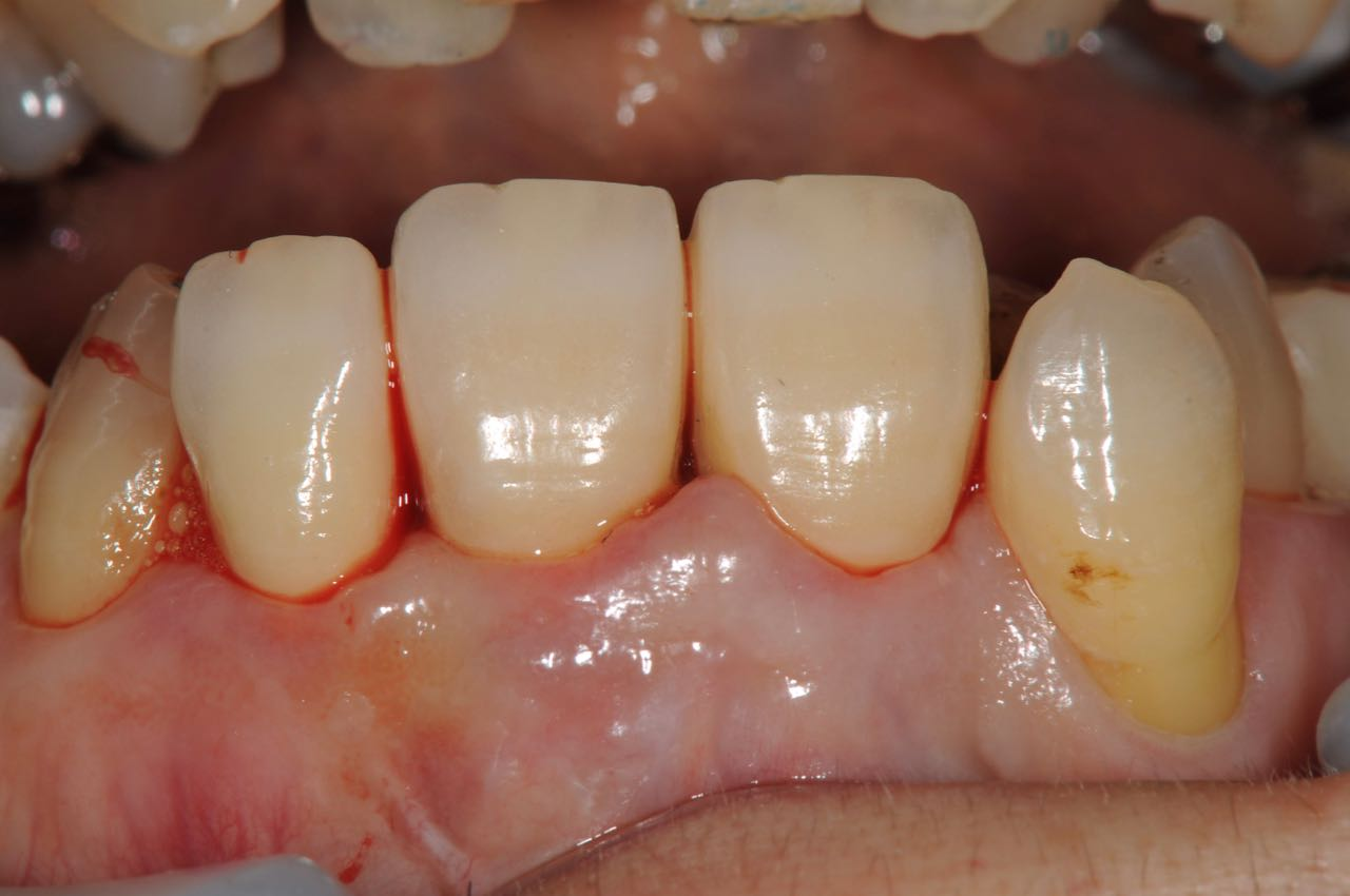 State in the mouth immediately after the zirconia crown with three crowns connected is set